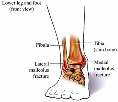 voet verstuikt zwelling
